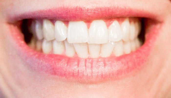 Cúrcuma: ¡el amigo de los dientes blancos!