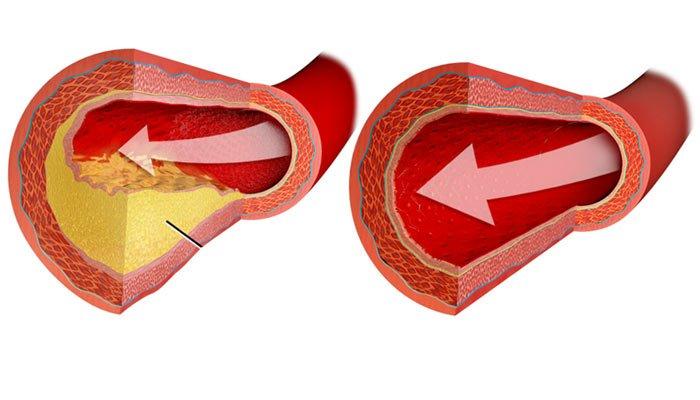 Exceso de colesterol, tratamientos naturales